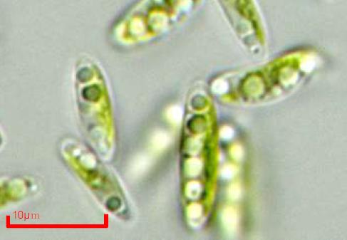 右:微細藻類コッコミクサKJ