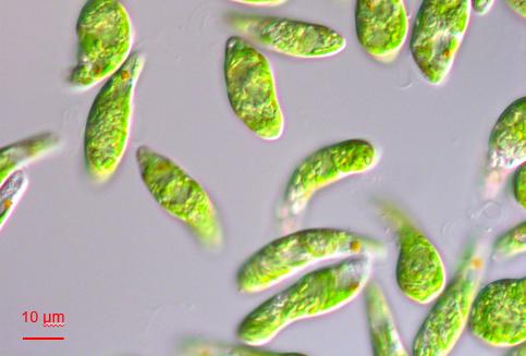 左:微細藻類ユーグレナ(和名:ミドリムシ)